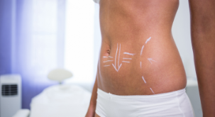 female-body-with-drawing-arrows-abdomen-liposuction-cellulite-removal