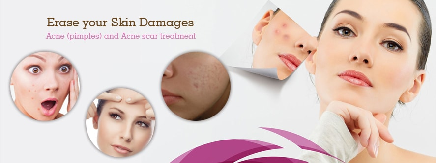 Acne-pimples-and-Acne-scar-treatment