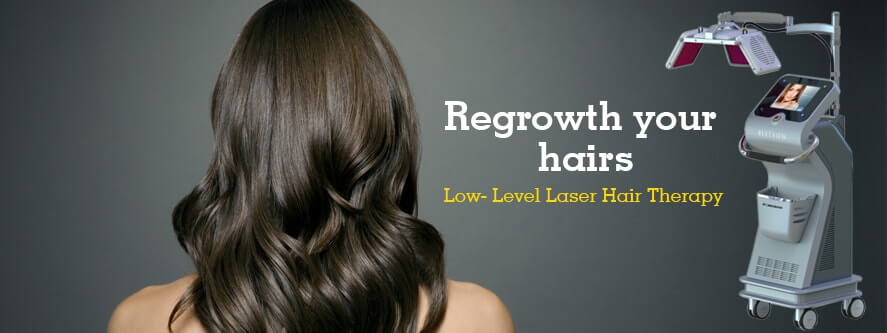 Low-Level-Laser-Hair-Therapy-copy-min