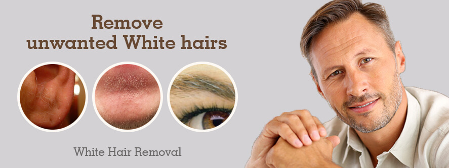 White Hair Removal