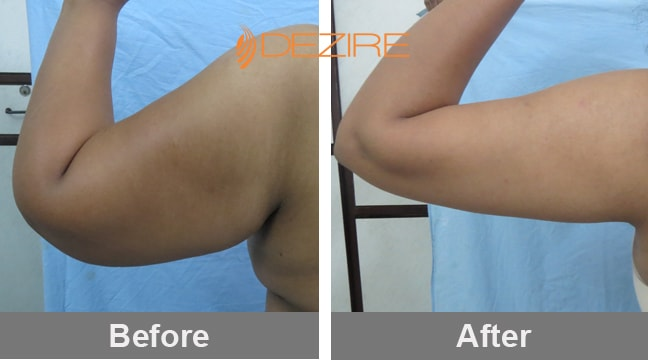 cost-of-hand-liposuction-in-india-kaveri-nikam-vaser-arms-abdo-thigh-liposuction-min