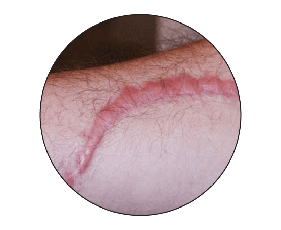 Keloid and Hypertrophic Scar